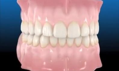 Saúde Bucal - O que acontece quando perde se perde um dente...
